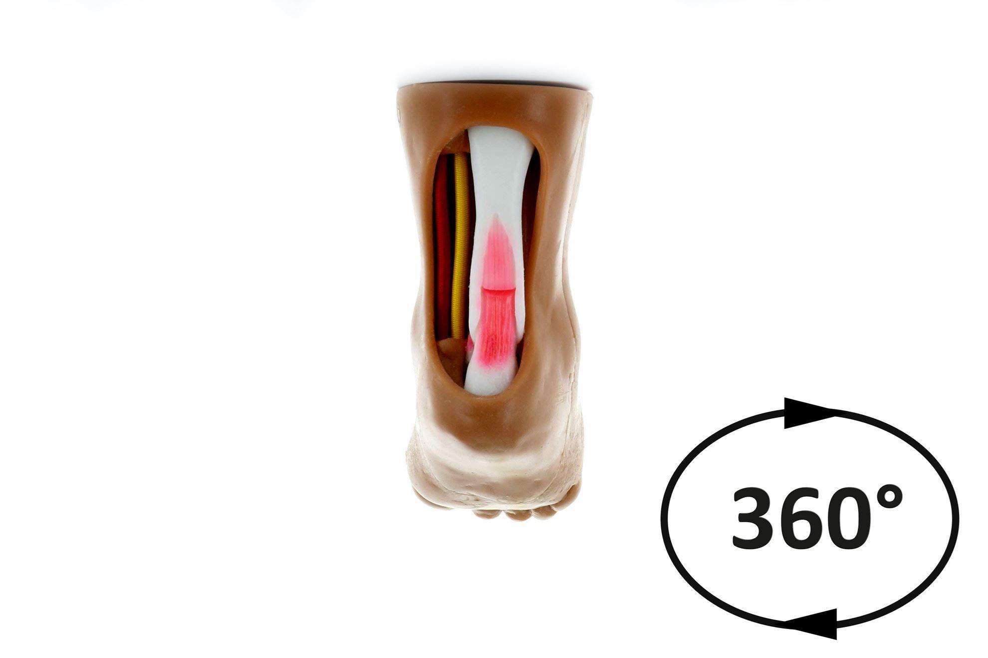 Tenotomy Model